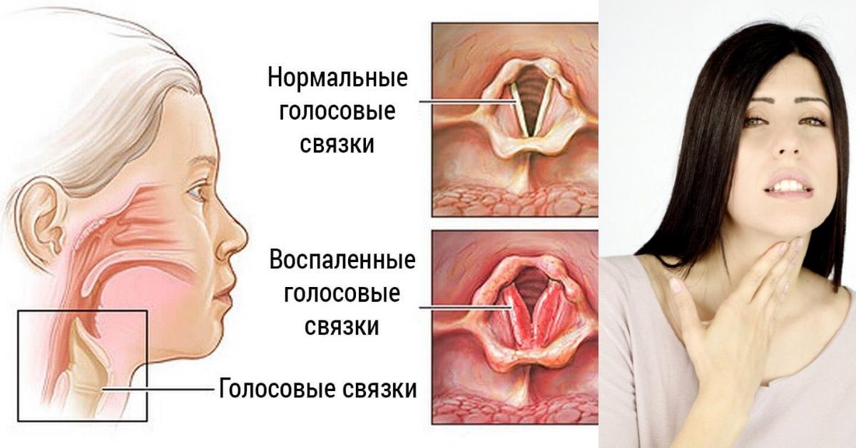 Почему чешется горло когда болеешь