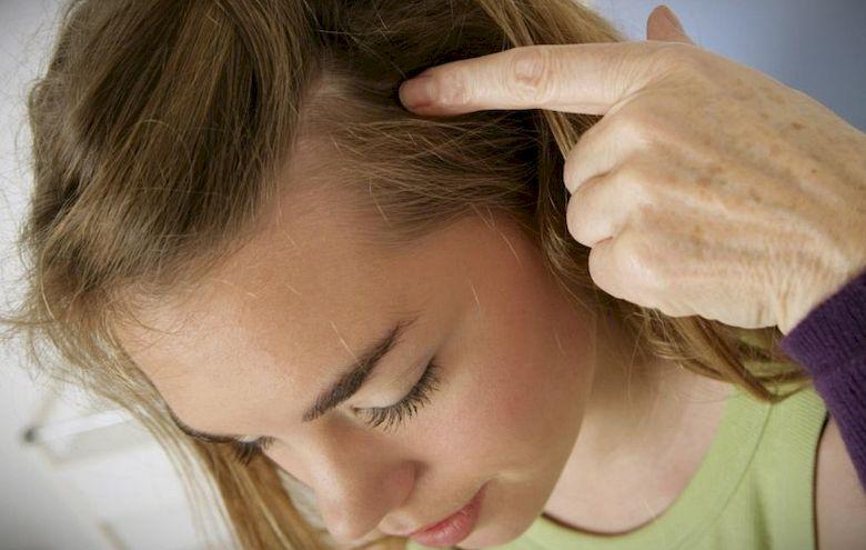 Методы лечения зуда головы