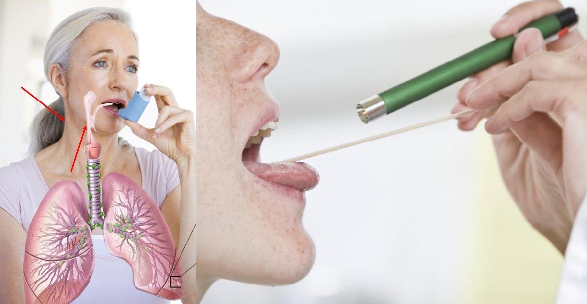 Почему чешется горло и уши внутри и появляется кашель